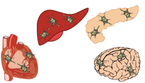 A drawing of heart, liver, pancreas, and brain showing damaged spots