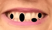 A close-up of a smile, with four large black ovals obviously edited in over the teeth